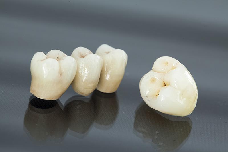 Photo Comparison of Bridges and an Implant