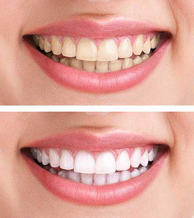 Cosmetic Dentistry at One Stop Implants