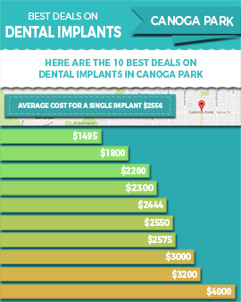 Best Deals / Lowest Prices on Dental Implants in Canoga Park