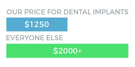 Cost of dental implants in the city of Norwalk