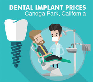 Dental Implant Costs in Canoga Park