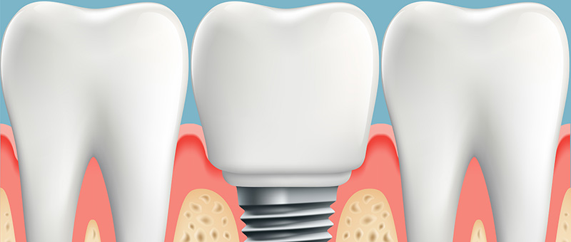 Dental Implant between two natural teeth