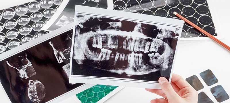 Dentist with Patient Showing Xray of Oral Cavity