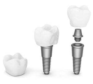 Dental Implant Abutment, Crown, and Implant