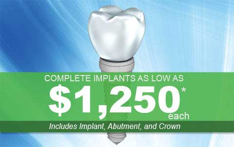 Mobile Dental Implant Price